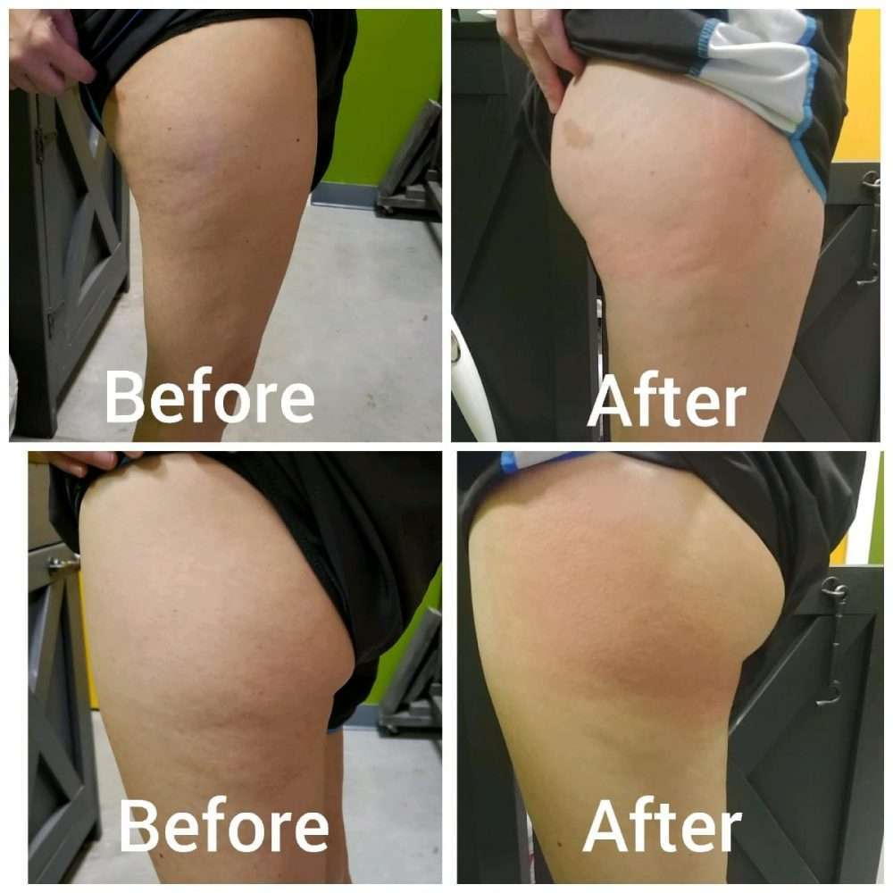 Before and after Cryoskin